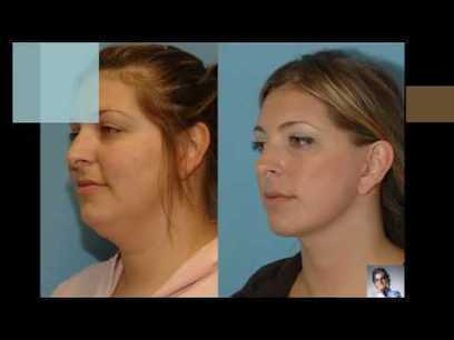 Dr.Lionel Jedeikin- Offering best Plastic Surgery Operations. Visit: | Business Room | Scoop.it