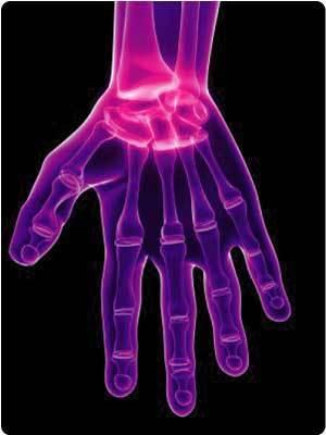 TNF Treatment for Rheumatoid Arthritis Boosts Skin Cancer Risk - US News and World Report | BlablaDoctor | Scoop.it