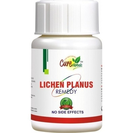 What Is Lichen Planus And How Is Treated   CURE HERBALS   Scoop.it