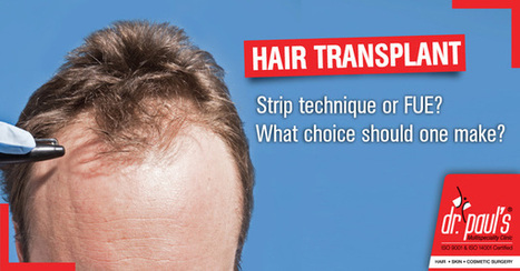Most Effective Hair Transplant Methods of Strip Technique or Follicular Unit Extension | Skin Care | Scoop.it