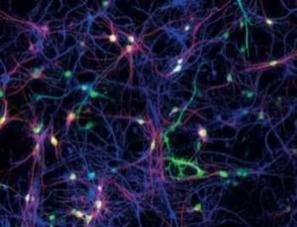 IBM's Neuro-Synaptic Chip Mimics Human Brain. | Managing Technology and Talent for Learning & Innovation | Scoop.it