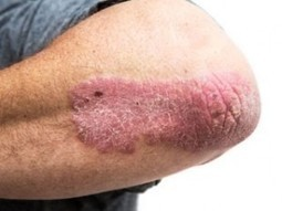 Overcome Psoriasis with Alternative Homeopathy Treatment - Homeocare International | Homeopathy treatment for all acute and chronic diseases | Scoop.it