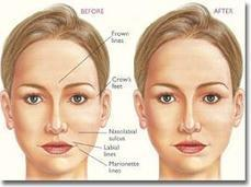 Removing Wrinkles with proper Skin Care Treatment   Health Topics   Scoop.it