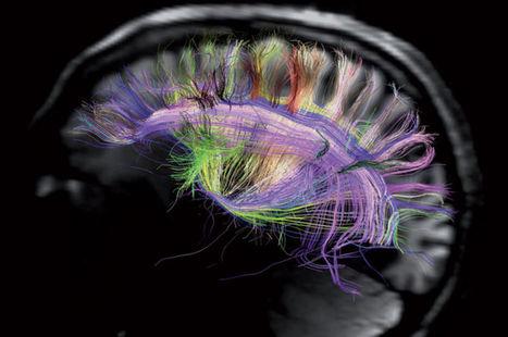 Un assistant cognitif personnel pour ne plus rien oublier ? IBM en rêve | Post-Sapiens, les êtres technologiques | Scoop.it