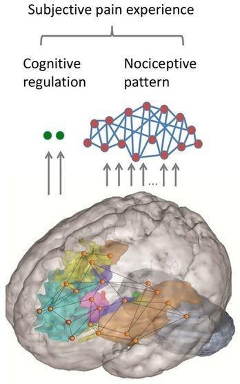 Deric's MindBlog: Parallel brain systems regulate our pain. | Social Neuroscience Advances | Scoop.it