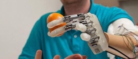 Prothèses : la réalité rejoint la science-fiction | Buzz e-sante | Scoop.it