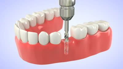 Dental implants Australia | Dental implant treatment | Scoop.it