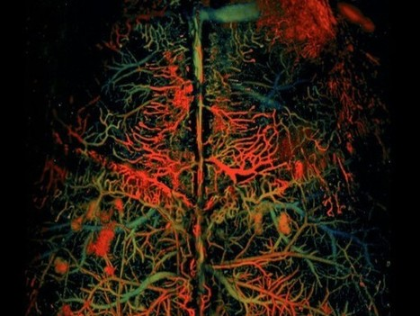 A faster way to watch blood flow in the brain | Social Neuroscience Advances | Scoop.it