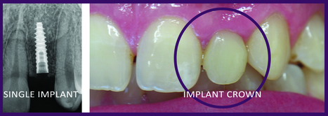 Benefits Of Single Dental Implant Over A Bridge   Ridgetop Dental   Scoop.it