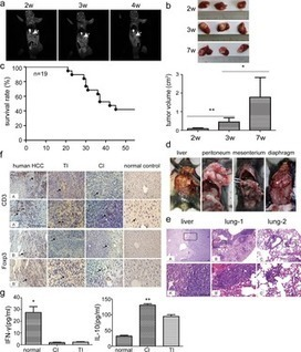 Intrahepatic Tissue Implantation Represents a Favorable Approach for Establishing Orthotopic Transplantation Hepatocellular Carcinoma Mouse Models | Hepatitis C New Drugs Review | Scoop.it