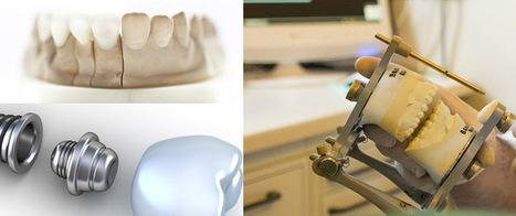 Meglio il ponte o l'impianto dentale | Studio Degidi Bologna | Blog Implantologia Dentale Degidi | Scoop.it