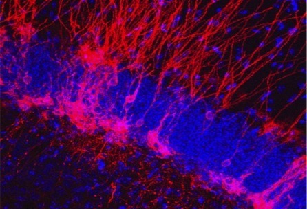 Could making new neurons treat anxiety? - Futurity | Science | Scoop.it
