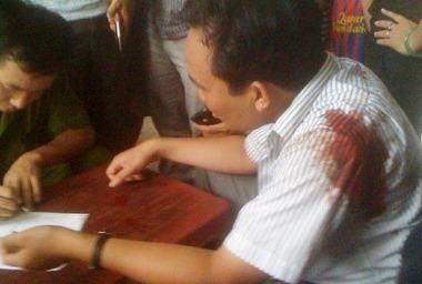 CSGT nổ súng một người bị thương | Tin Tức An Ninh | songkinhcut | Scoop.it
