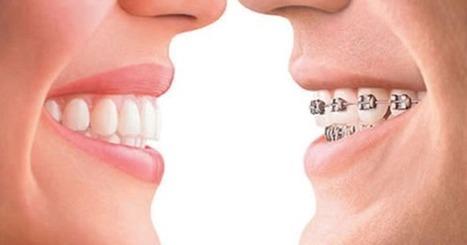 Understanding Orthodontic Treatment & Braces   Dental Care   Scoop.it