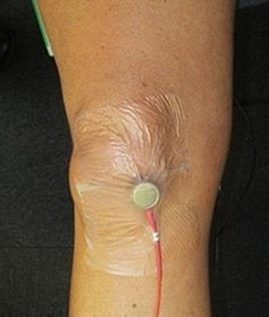 Device monitors noisy knees to diagnose osteoarthritis | News | The Engineer | Physical activity and Health | Scoop.it