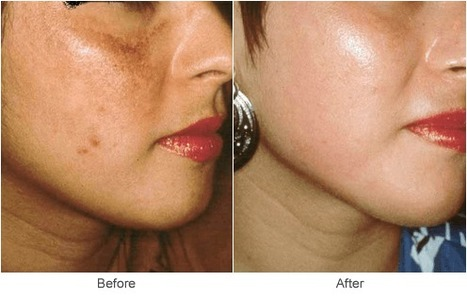 Take Care of Wrinkles with Facial Resurfacing in Marylan | Best website pages | Scoop.it