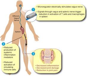 Vagus Nerve Stimulation for Rheumatoid Arthritis | Medical ... | Health and the Vagus Nerve | Scoop.it