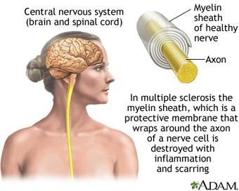 Study: Stem Cells Fight Multiple Sclerosis | Adult Stem Cells Repair Body | Scoop.it