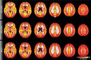 Evidence of cognitive decline detected before symptoms appear | Science | Scoop.it