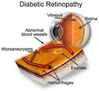 Comparing the Effectiveness of Telemedicine and Traditional Surveillance in Providing Diabetic Retinopathy Screening | 8- TELEMEDECINE & TELEHEALTH by PHARMAGEEK | Scoop.it