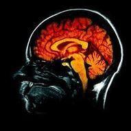 Les thérapies régénératives, un espoir pour les maladies du cerveau ? - Medium4You | Les promesses des nanotechnologies | Scoop.it