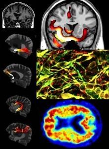 Creative Brains: Music, Art & Emotion | BayAreaScience.org | The Creative Brain | Scoop.it