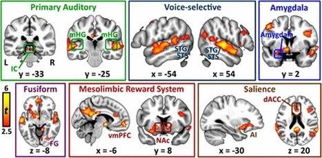 Mom's Voice Activates Many Different Regions in Children's Brains | Autisme en het jonge kind | Scoop.it