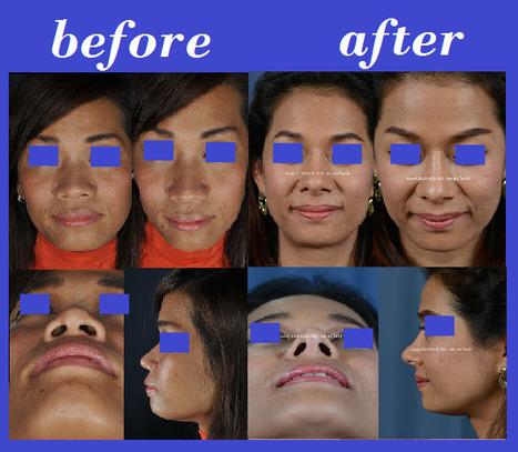Nose Augmentation Rib Cartilage Thialand | Bangkok Aesthetic Surgery Center | Bangkok Aesthetic Surgery | Scoop.it