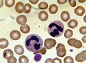 Staining Methods for Malarial Blood Films Compared | Medical biology science news | Scoop.it