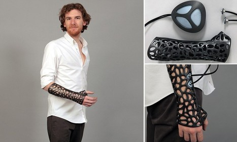 Is this the plaster cast of the future? | Positive futures | Scoop.it