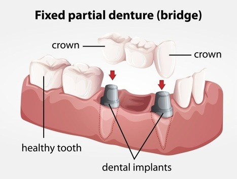 Getting Dentures Retained by Implants | My Preference | Scoop.it