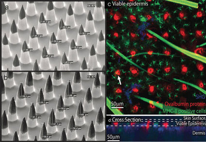Nanotechnology needle arrays for drug delivery | Amazing Science | Scoop.it