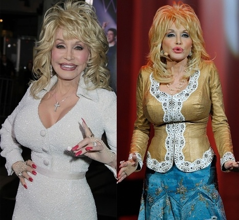 Did Dolly Parton have plastic surgery? | Celebrity Plastic Surgery | Scoop.it