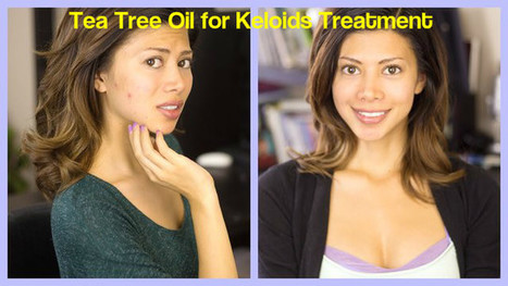 Tea Tree Oil for Keloids Treatment - How to Use it Effectively? - Stylish Walks | Beauty Fashion and Makeup Tips or Ideas | Scoop.it