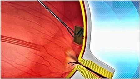 Bio-Retina to enter clinical trials in 2013   Longevity science   Scoop.it