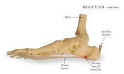 How To Get Rid Of Heel Spurs Naturally | BASIC CURE | Basic Cure | Scoop.it