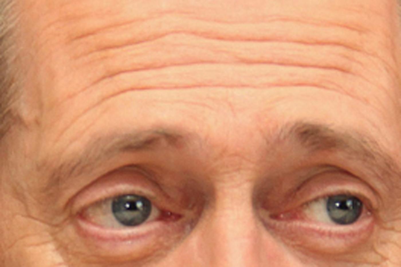 yeux buscemi.jpg
