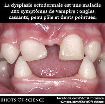 La dysplasie ectodermale est une maladie aux symptômes de vampire : ongles cassants, peau pâle et dents pointues.   Shots Of Science   Les explications scientifiques des mythes   Scoop.it