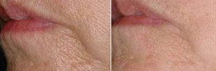 Wrinkle Reduction - Skin Medical | Anti-Aging Facial Rejuvenation | Scoop.it