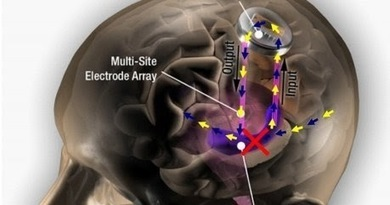 Next Big Future: Neuroprosthesis to mimic, repair and improve cognition | cognition | Scoop.it
