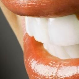 Dental Implants: Information, Facts & Teeth Advice - TeleManagement | Dentist | Scoop.it