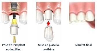 Implant dentaire Tunisie - Marque Suisse : Estetika Tour | Chirurgie Plastique | Scoop.it