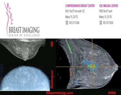 The need to undergo mammography is crucial | Comprehensive Breast Center | Scoop.it