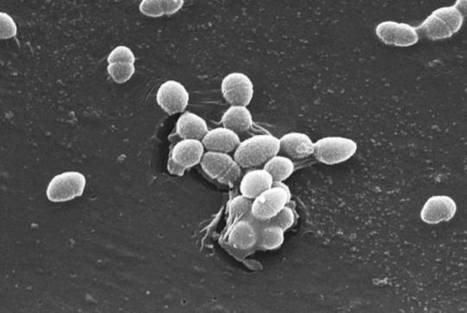 Monitoring the Rise and Fall of the Microbiome | candida | Scoop.it