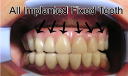 Dental Implants Procedure In Delhi | Best Cosmetic Surgeons in delhi | Scoop.it