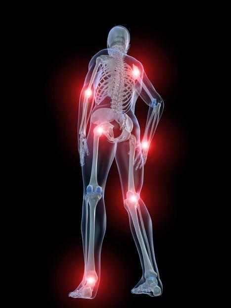 Les 10 signes les plus communs de la fibromyalgie | noemie34350 | Scoop.it