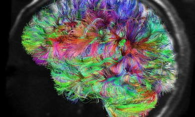 » Are Brains of Artists Different? - The Creative Mind | Arts and Education | Scoop.it