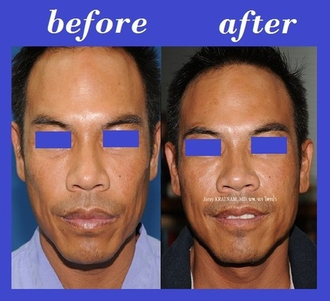 Bangkok Aesthetic Surgery Center: Buccal Fat Injection Thailand | Bangkok Aesthetic Surgery Center | Scoop.it