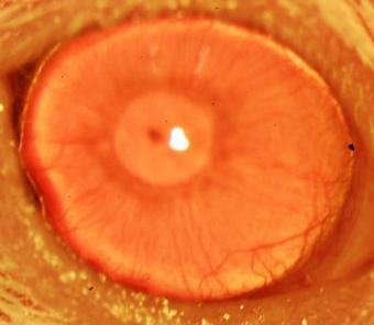 Researchers regrow human corneas in mice | KurzweilAI | Longevity science | Scoop.it