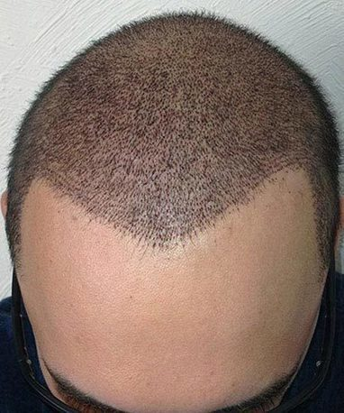 Hair Transplant can rescue hair Loss   Royal Cosmetic Surgery   Scoop.it